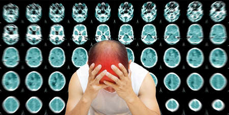 World Stroke Day,CT Scan Brain A man suffering from pulsating pain of headache. People medical healthcare and technology  concept Фото со стока