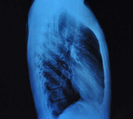 X-Ray Image Of Human Chest front view and lateral view photo
