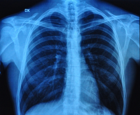 bronchial: X-Ray Image Of Human Chest front view and lateral view