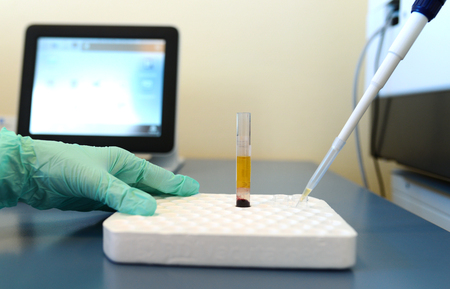 Medical clinic Pathological bacteria cultivation sample test