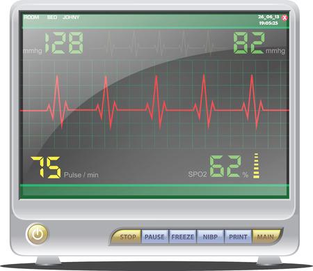 monitor de computadora: Monitor de ECG Vectores