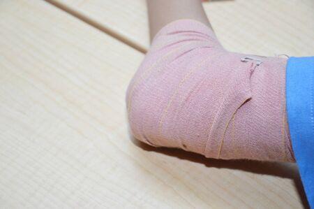 elbow band: bandaged elbow