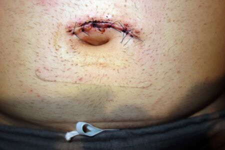 Stitches after umbilical hernia surgery