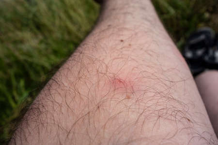 A red spot on a person's skin after a mosquito attack