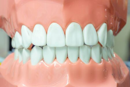 fake smile: Dental study model in close up