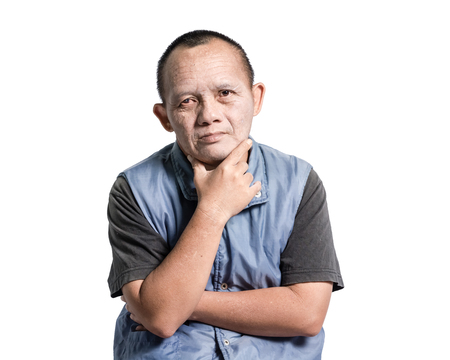 disadvantaged: Portrait of a man with down syndrome. Isolated on white background Stock Photo