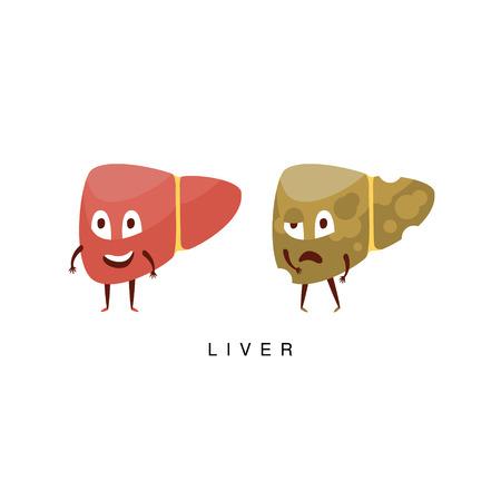Gesunde vs ungesunde Leber Infografik Illustration.Humanized Menschliche Organe Childish Cartoon-Figuren auf weißem Hintergrund