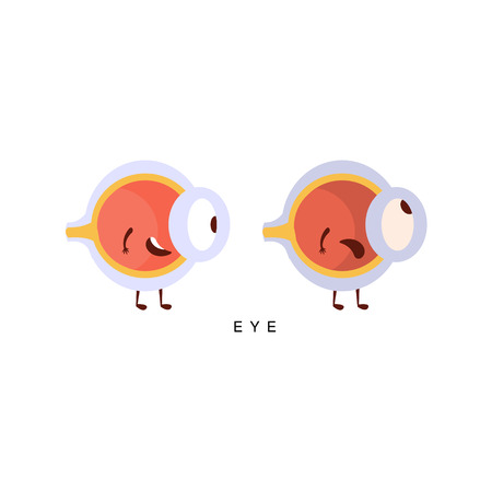 insides: Healthy vs Unhealthy Eye Infographic Illustration.Humanized Human Organs Childish Cartoon Characters On White Background Illustration