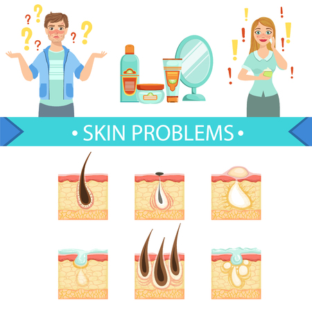 sebaceous: Skin Problems Infographic Medical Poster. Cartoon Style Healthcare Acne Issue Info Illustration. Flat Vector Simplified Illustration On White Background. Illustration