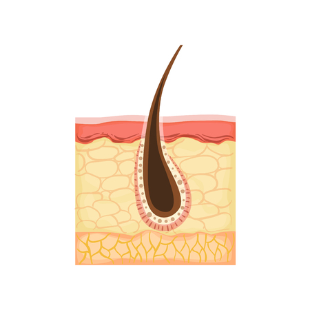 Dermatology Skincare Anatomical Info Illustration Demonstrating Skin Problem Development With Hair Root Inflammation. Skin Concerns And Their Cosmetologically Solutions Illustration From Bad Skin Collection.