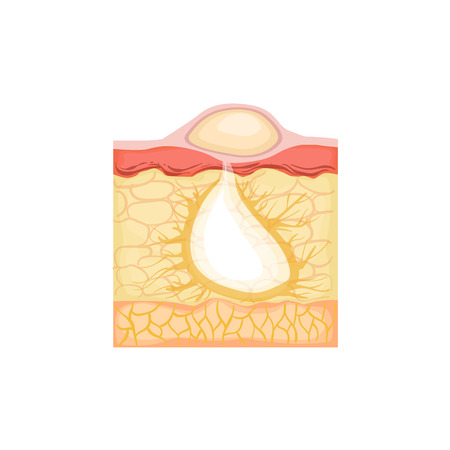 skin problem: Dermatology Skincare Anatomical Info Illustration Demonstrating Pimple Skin Problem Development. Skin Concerns And Their Cosmetologically Solutions Illustration From Bad Skin Collection.