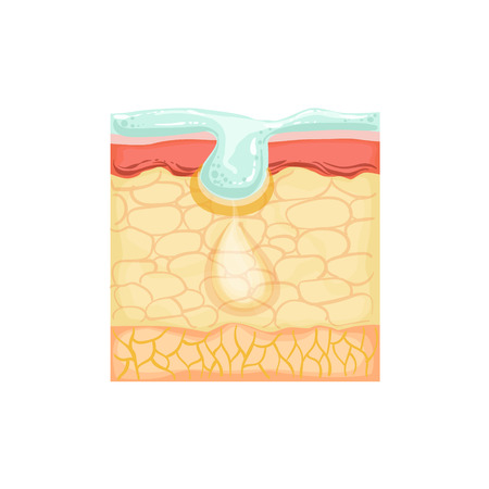 concerns: Dermatology Skincare Anatomical Info Illustration Demonstrating Skin Problem Treatment With Cosmetology Cleansing Product. Skin Concerns And Their Cosmetologically Solutions Illustration From Bad Skin Collection.