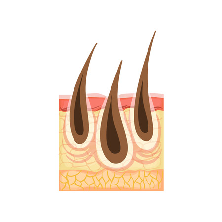 skin problem: Dermatology Skincare Anatomical Info Illustration Demonstrating Skin Problem Development With Irritated Hair. Skin Concerns And Their Cosmetologically Solutions Illustration From Bad Skin Collection.