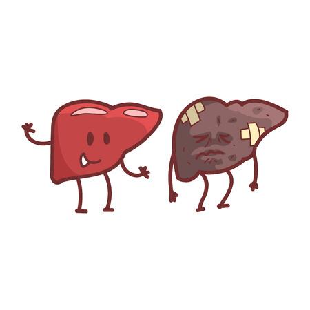 Lever Menselijk inwendig orgaan Gezond versus ongezond, medisch Anatomisch Grappig stripfiguur Paar in vergelijking Gelukkig tegen ziek en beschadigd