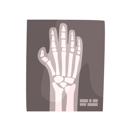 X ray image of human hand cartoon vector Illustration Illusztráció