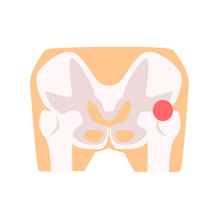 Femural joint pain, hip injury cartoon vector Illustration