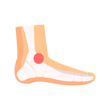 Ankle joint pain cartoon vector Illustration