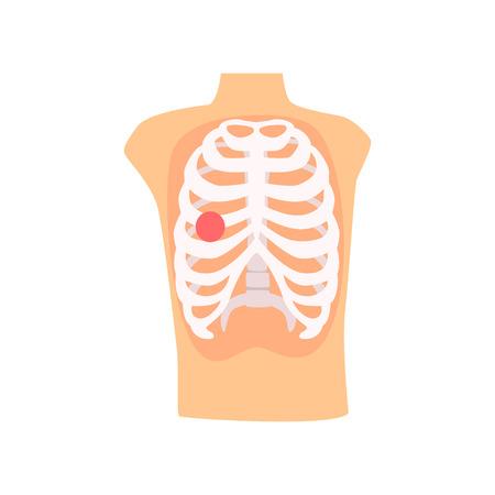 뼈 부상 통증 만화 벡터 일러스트 레이션 일러스트