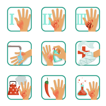 Degree burns set, burns treatment and classification vector Illustrations on a white background