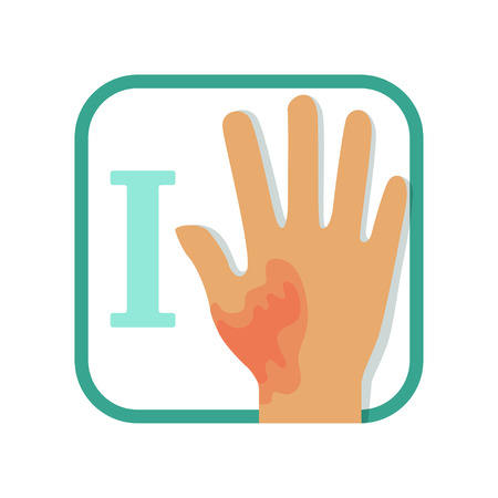 Informative illustration of first-degree burn. Damaged hand with redness, no blisters. Injury concept. Flat vector design for infographic card, brochure or poster Vettoriali