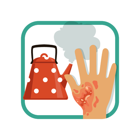 Illustration showing third degree burn of hand. Severe burns skin from kettle. Thermal injury. Flat vector design element for card, brochure or poster