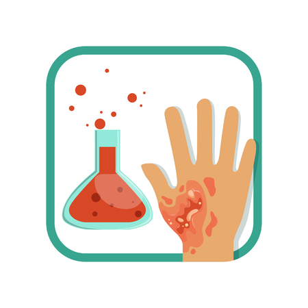 Chemical burn of third-degree. Hand with damaged outer (epidermis) and inner (dermis) layer of skin. Severe injury. Flat vector design for poster or brochure Illustration