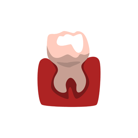 Tooth and gum vector Illustration isolated on a white background.  イラスト・ベクター素材