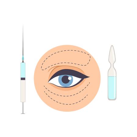 Tratamiento con ácido hialurónico de arrugas mímicas debajo de los ojos, procedimiento cosmético de biorevitalización para rejuvenecimiento facial, cosmetología y concepto de anti envejecimiento vector ilustración