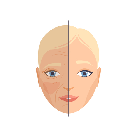Face of woman before and after cosmetic procedure, face rejuvenation, cosmetology and anti aging concept vector Illustration isolated on a white background. Illusztráció