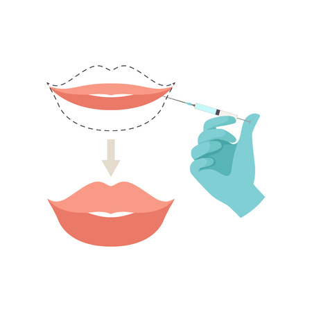 Lips augmentation procedure, hyaluronic acid lip injections vector Illustration isolated on a white background. Çizim