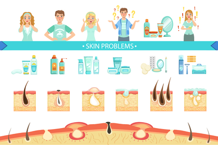 Skin Problems Infographic Medical Poster. Cartoon Style Healthcare Acne Issue Info Illustration. Flat Vector Simplified Illustration On White Background. Иллюстрация
