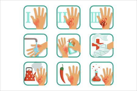 Set di ustioni di grado, trattamento delle ustioni e classificazione illustrazioni vettoriali su sfondo bianco Vettoriali
