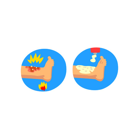 Thermal skin burn of leg, first aid and treatment vector Illustration isolated on a white background. Illustration