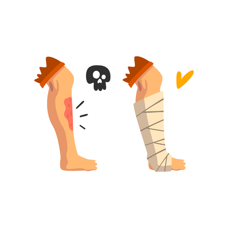 Wounded leg, physical injury, bandaged leg, first aid and treatment vector Illustration isolated on a white background.