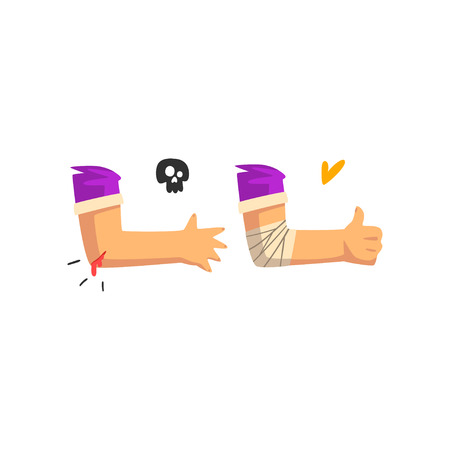 Wounded elbow with blood oozing, physical injury, first aid and treatment vector Illustration isolated on a white background.