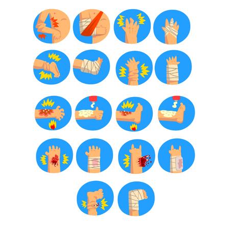 Beschadigde lichaamsdelen set, verstuikingen, breuken, brandwonden van de armen en benen, eerste hulp en behandeling vector illustratie geïsoleerd op een witte achtergrond.
