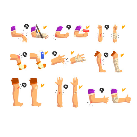 Damaged body parts set, injuries and fractures of the arms and legs, first aid and treatment vector Illustration isolated on a white background.
