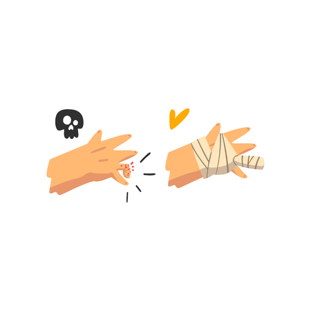 Fracture of the finger, hand plastered, physical injury, first aid and treatment vector Illustration isolated on a white background. Stock Vector - 126540552