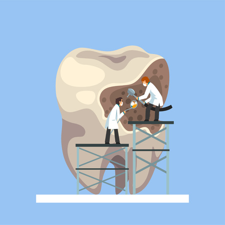 Two Small Male Doctors Treating Giant Unhealthy Tooth with Plaque and Caries Hole Vector Illustration on Light Blue Background.