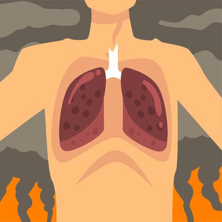 Poumons humains, personnes souffrant de poussière fine, smog industriel, maladies respiratoires dues à la pollution atmosphérique de l'industrie, illustration vectorielle