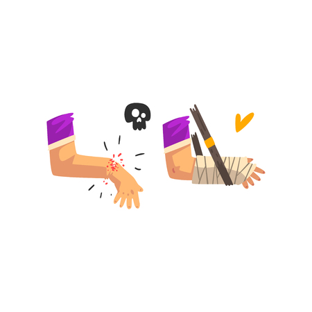 Fracture of the wrist, hand plastered, physical injury, first aid and treatment vector Illustration isolated on a white background.