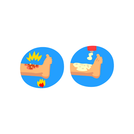 Thermal skin burn of leg, first aid and treatment vector Illustration isolated on a white background. Ilustração