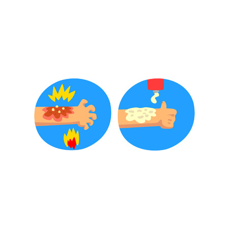 Thermal skin burn of hand, first aid and treatment vector Illustration isolated on a white background.