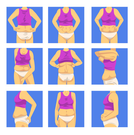 Part of Female Overweight Body Set, Human Figure After Weight Loss, Front, Back and Side View, Obesity and Unhealthy Eating Problems Vector Illustration