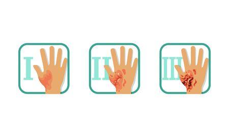 Grad der Hautverbrennungen eingestellt, normale bis schwere Verletzung, erster, zweiter und dritter Grad, Broschüre oder Poster-Infografik-Element-Vektor-Illustration