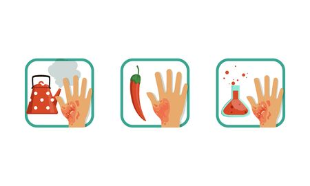 Types of Burns Set, Thermal, Chemical, Hot Chili Pepper Burns, Brochure or Poster Infographic Element Vector Illustration