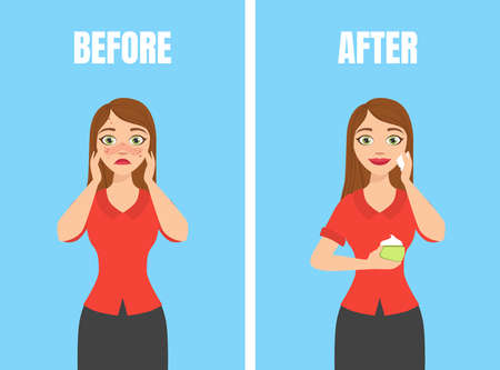 Girl with Acne Before and After Skin Treatment, Skin Care, Pure and Healthy Skin Vector Illustration Illustration