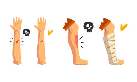 First Aid for Wounded Leg and Arm Vector Set Vektorové ilustrace