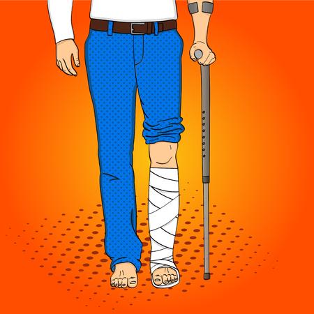 Pop-Art-Mann die Beine aus Gips, Zuckerrohr und Unterstützung. Rehabilitation Vector Nachahmung Comic-Stil. Vektorgrafik