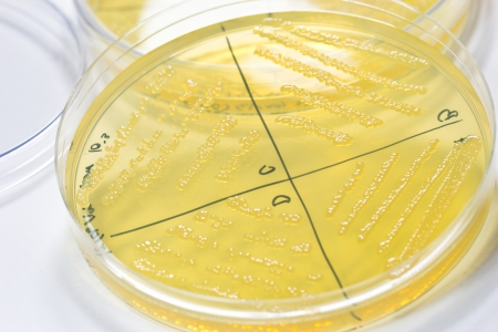 Petri dish with bacterial  colonies  Stock Photo - 20431030